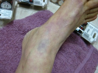 Bruises from locked leather retraint cuffs on for many hours, immobilizing me