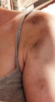 Left shoulder,,,