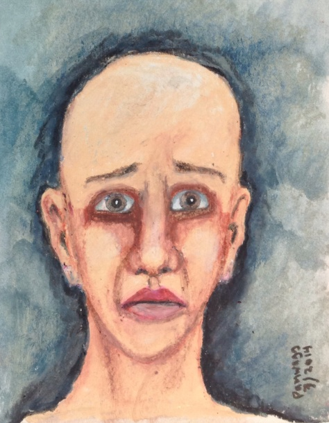 Sad bald woman