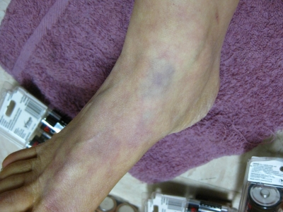 Ankle swollen and discolored from hours in 4-point punitive restraints the night before discharge/escape